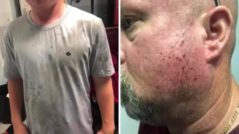 A family who was visiting North Myrtle Beach said they were pelted with eggs by strangers as...